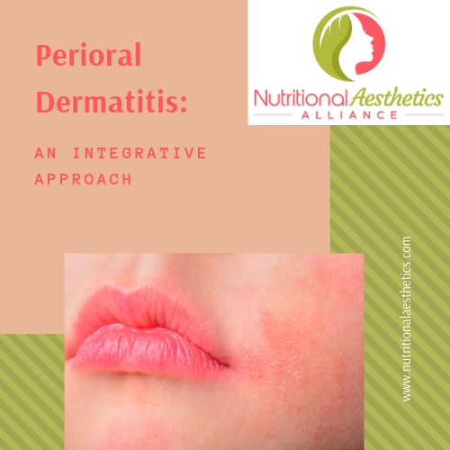 Perioral Dermatitis: An Integrative Approach