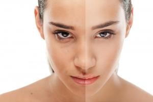 split image of unretouched vs retouched photo