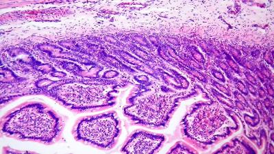 Heathy lymph close up